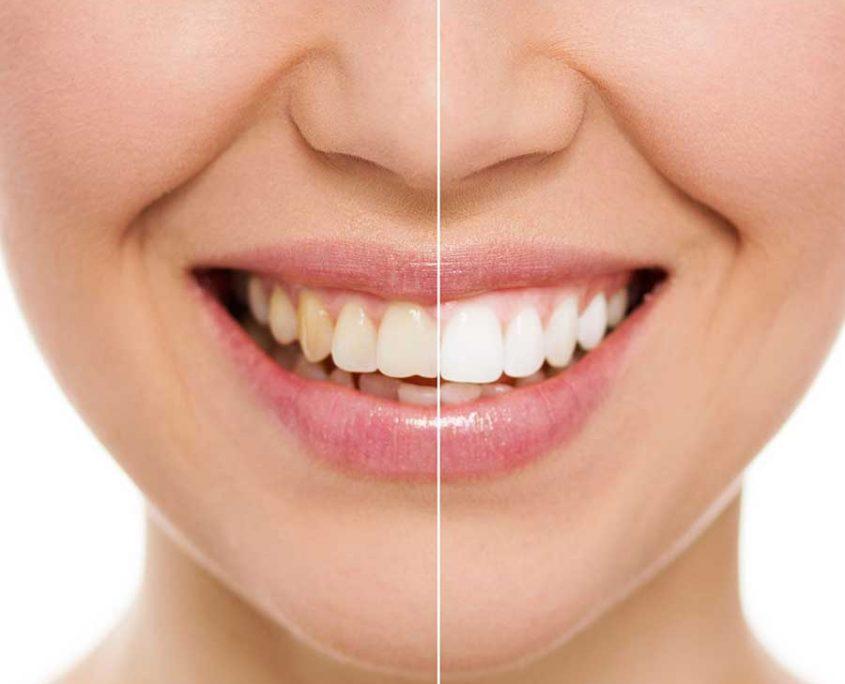Tanden bleken, Kiezen bleken, Verkleurde tanden of kiezen, Wittere tanden – Tandartsenpraktijk-Arnout & Hobbelink - Amsterdam - ahtandartsen.nl