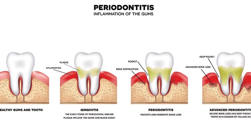 Tandvleesontsteking - Parodontologie: Door onjuist poetsen kan uw tandvlees ontstoken raken. Als hier niets aan gedaan wordt en u ermee blijft rondlopen, kan ook het kaakbot ontstoken raken. Het gevaar bij een tandvleesontsteking is juist dat het in het beginstadium meestal niet voelbaar is. De ontsteking geeft wel schade aan uw gebit, maar u voelt het niet. Daarom is het belangrijk om twee keer per jaar naar de periodieke controle te gaan, en uw mond goed te verzorgen. Blijf er sowieso niet mee rondlopen, want de ontsteking kan zich uitbreiden, waardoor tanden en kiezen los gaan zitten en u uiteindelijk zelfs tanden en kiezen kunt verliezen. - Tandartsenpraktijk Arnout & Hobbelink - Amsterdam - ahtandartsen.nl