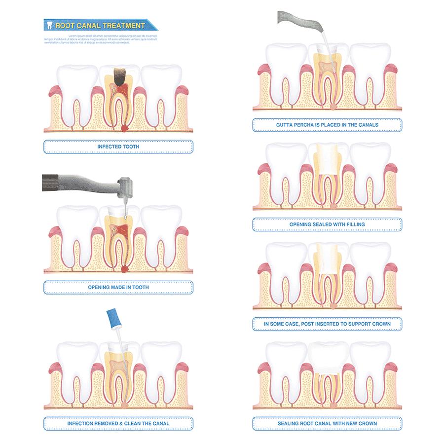 Uitleg stappen wortelkanaalbehandeling tandarts. Blijf niet rondlopen met een ontsteking. Let op: niet elke ontsteking doet pijn. Neem contact op met uw tandarts als u vermoed dat u een ontsteking heeft. Daarmee voorkomt u grotere schade aan uw gebit. - Tandartsenpraktijk Arnout & Hobbelink - Amsterdam - ahtandartsen.nl